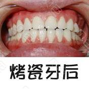上海雅乐齿科烤瓷牙案例对比