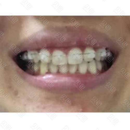 北京中诺口腔这人洗牙+牙齿矫正经历分享