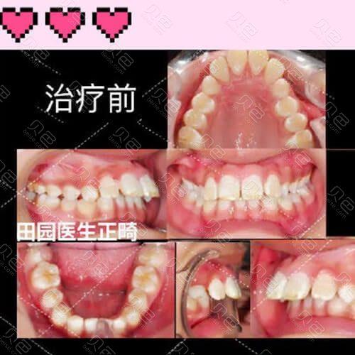 北京拜博口腔医院儿童牙齿矫正5年变化经历
