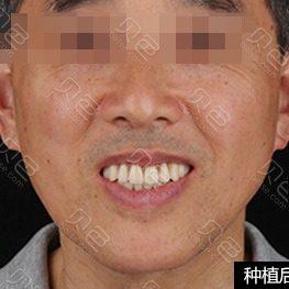 北京瑞鲨口腔医院种植牙前后对比案例