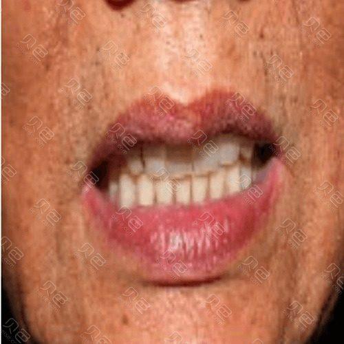 雅度口腔种植牙真人案例!