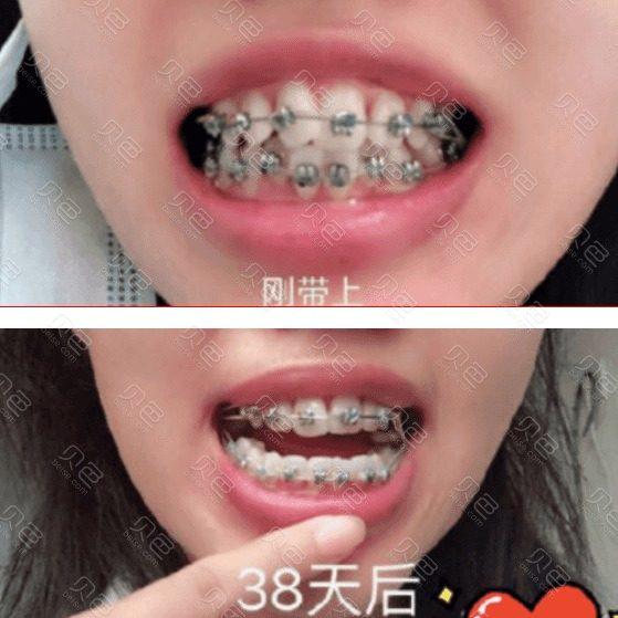 金属托槽牙齿矫正300天恢复记录