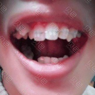 陶瓷托槽牙齿矫正案例
