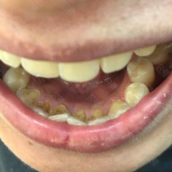 抽烟牙渍超声波治疗效果案例