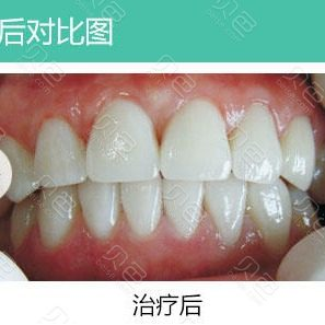 纳米蓝光牙齿美白前后对比照