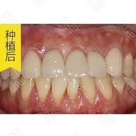 深圳同步牙科半口种植案例对比