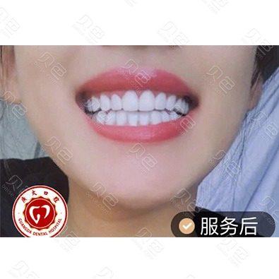 广州广大口腔医院冷光美白牙齿前后对比