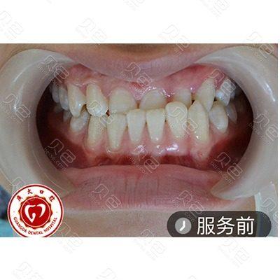 广州广大口腔医院牙齿矫正前后对比