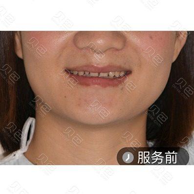 广州广大口腔医院牙齿贴面修复案例