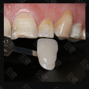 武汉华美口腔全瓷牙贴面拯救黑黄氟斑牙真人案例