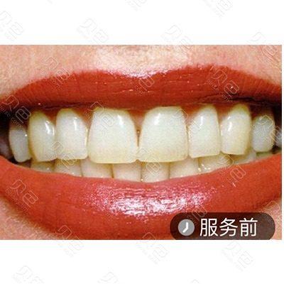 广州瑞德口腔冷光美白牙齿案例