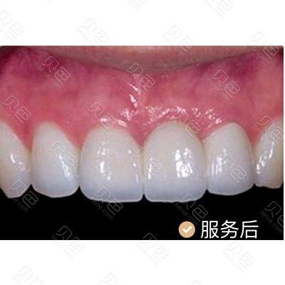 广州瑞德口腔即刻种植牙治疗案例