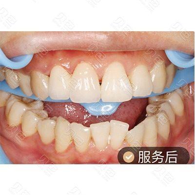 广州瑞德口腔烤瓷牙治疗对比案例