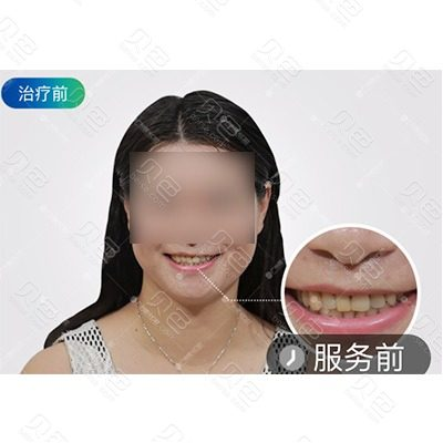广州曙光口腔3D瓷面治疗对比案例
