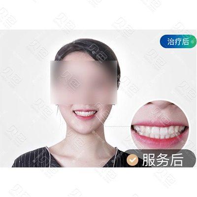 广州曙光口腔隐适美矫正对比案例