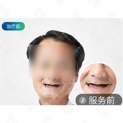 广州曙光口腔全口种植牙修复案例