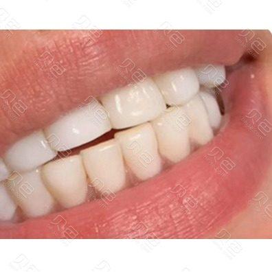南京华韩奇致美容医院口腔科牙齿冷光美白案例