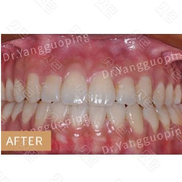 上海维乐口腔舌侧牙齿矫正对比案例
