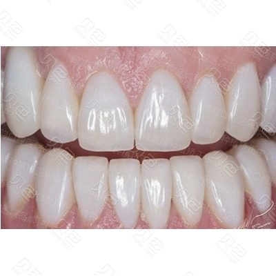 南京博韵口腔全口牙贴面修复案例