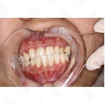 南京博韵口腔树脂填充补牙修复案例