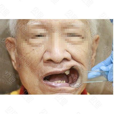 广州雅度种植牙案例