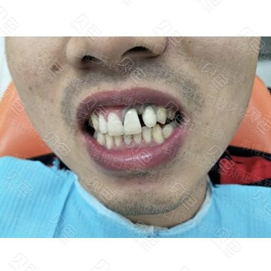深圳韦博口腔超薄牙齿贴面案例