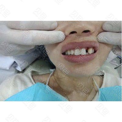 深圳韦博口腔虎牙种植牙案例