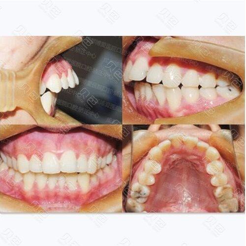 成都博爱医院口腔·矫正中心龅牙矫正案例对比