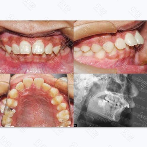 成都博爱医院口腔科下颌后缩怎么矫正牙齿真人案例曝光!
