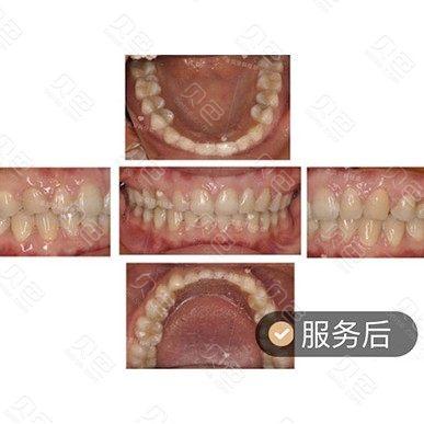 成都圣贝牙科牙齿稀疏牙缝大矫正案例