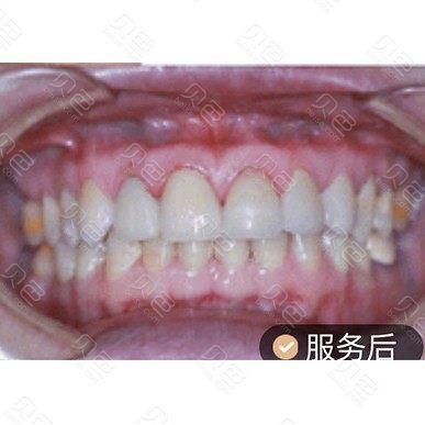成都圣贝牙科上前牙美学修复贴面案例
