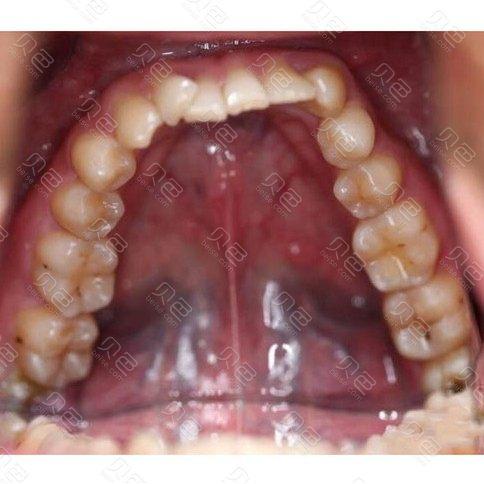 上海雅圣口腔隐形牙齿矫正前后对比案例图