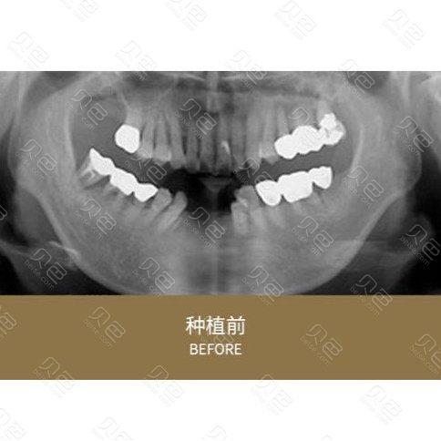 成都龙普兰特口腔种植牙对比案例