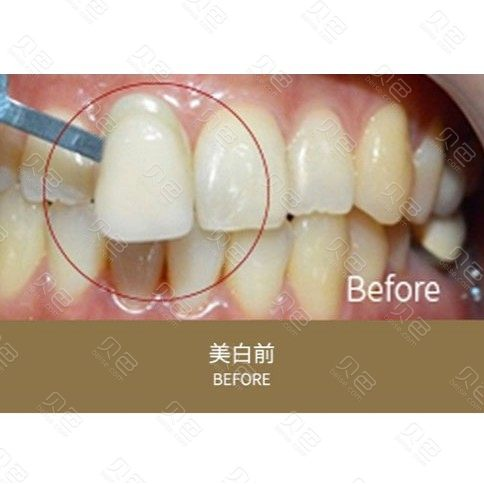 成都龙普兰特口腔牙齿美白案例