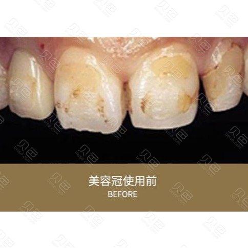 成都龙普兰特口腔牙齿贴片案例