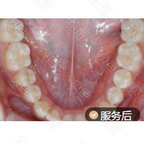 成都龙普兰特口腔树脂补牙案例