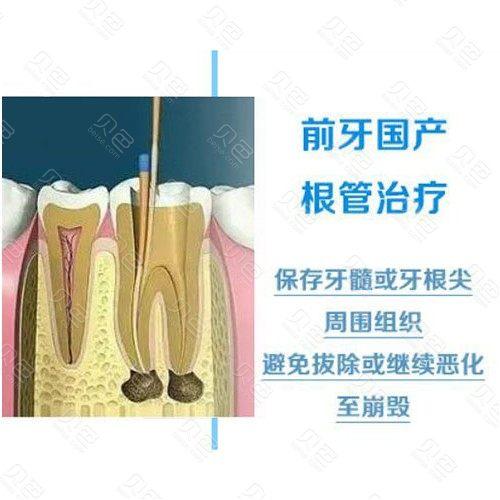 【根管治疗前牙】仅售240元,价值460元前牙国产根管治疗,男女通用!