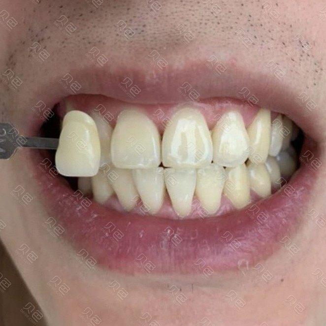 劲松口腔医院牙齿美白案例