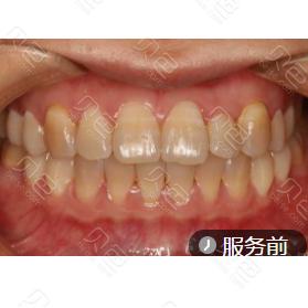 成都极光口腔色素牙瓷贴面案例