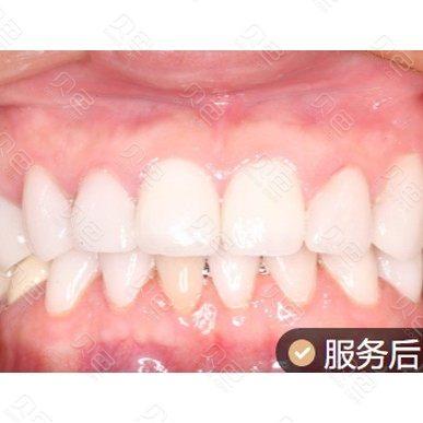 成都极光口腔氟斑牙治疗案例