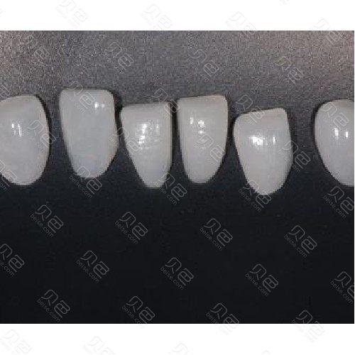 【牙齿贴片聚合瓷贴面】牙齿贴面