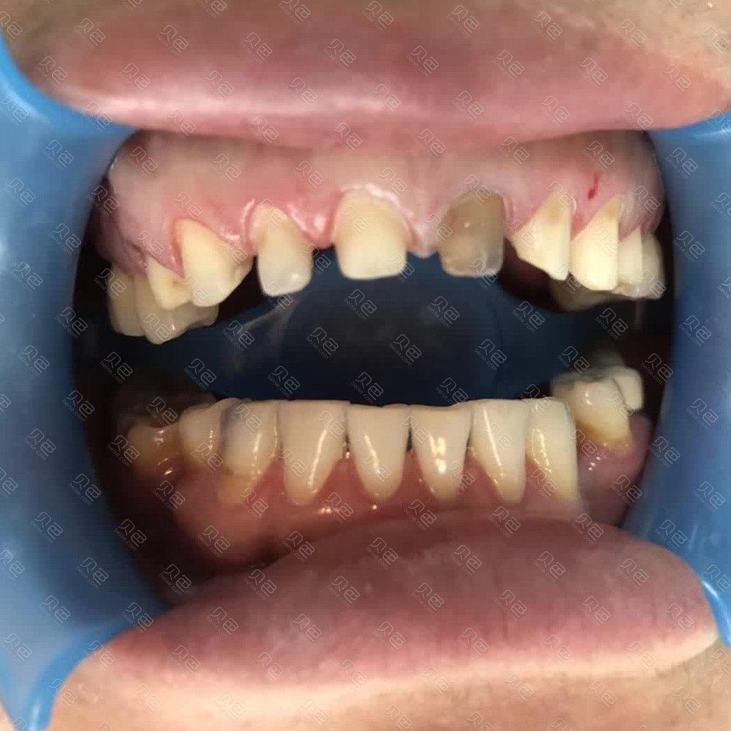 牙齿稀疏不美观,美国皓圣种植体,祝您重回微笑自信