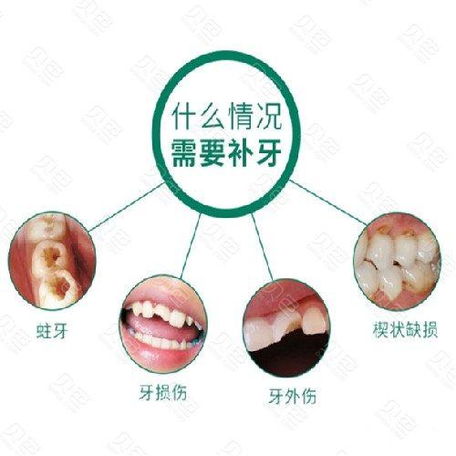 【补牙3MZ250】仅售188元,价值720元【3MZ250树脂补牙】 首颗特惠价,节假日通用!
