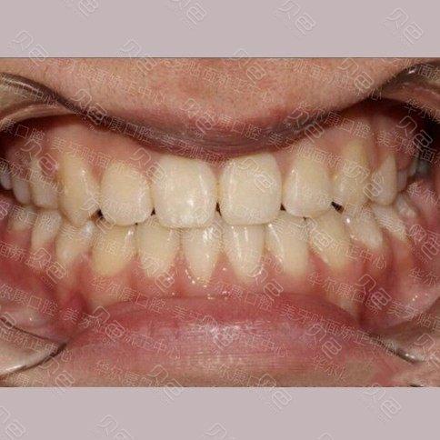 上海华尔康反颌地包天牙齿矫正案例全过程分享!