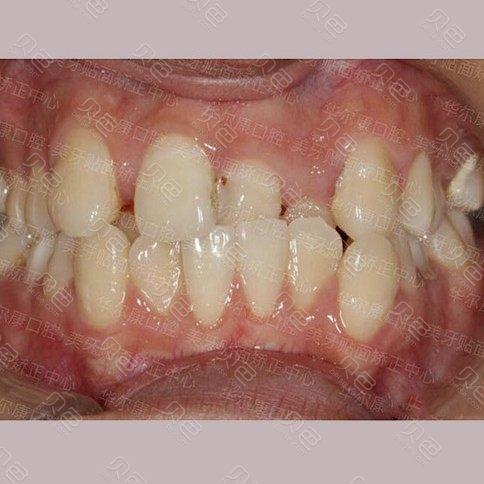 在上海华尔康做牙齿矫正过程,一口歪牙终于得到改善!