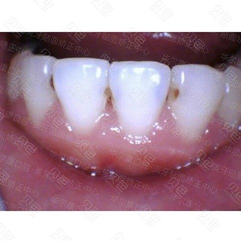 树脂补牙改善效果怎么样?分享我的真实补牙经历!