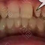 南昌辉煌口腔永修分院牙齿贴片案例