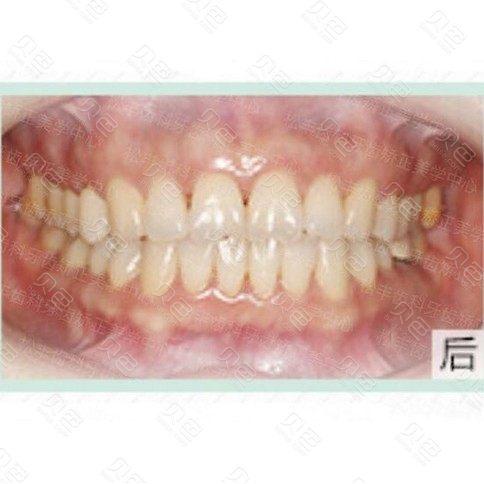 门牙牙缝3mm要多久矫正,年龄偏大还能恢复吗?