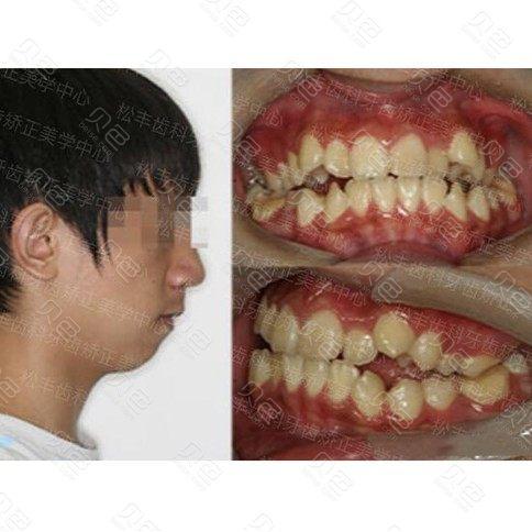 上海松丰做牙齿矫正怎么样,真人牙整形案例曝光!