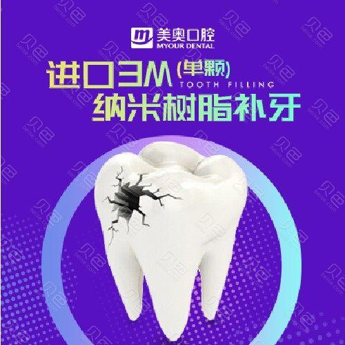 【补牙3MZ250】美国进口3M树脂补牙(仅限首颗)